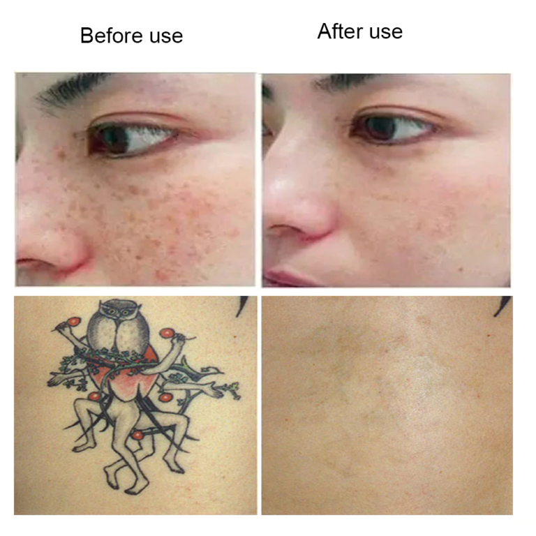 now you can remove a tattoo at home