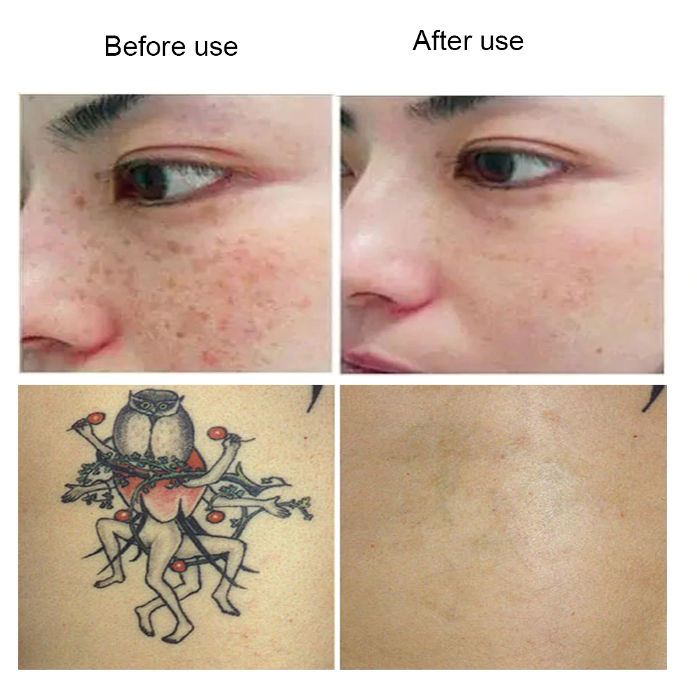 Read more about the article now you can remove a tattoo at home