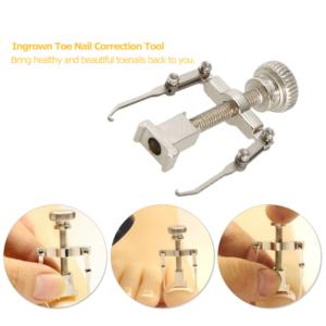 Ingrown Toe Nail Correction Tool